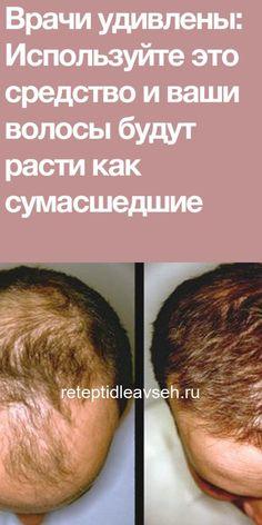 Врачи удивлены: Используйте это средство и ваши волосы будут расти как сумасшедшие! Hair Loss Remedies, Hair Growth, Healthy Lifestyle, The Cure, Healthy Eating, Hair Beauty, Weight Loss, Healthy Recipes, Medicine