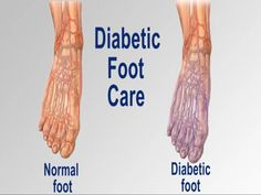 Diabetes is one emerging and rapidly increasing disease. In routine course the p. - Diabetes is one emerging and rapidly increasing disease. In routine course the people do not consid - Beat Diabetes, Diabetes Facts, Gestational Diabetes, Health Tips, Health And Wellness, Diabetic Tips, Diabetes Information, Diabetic Neuropathy, Moringa Oleifera