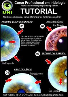 Blog de cursoiridologia : IRIDOLOGIA - CURSO A DISTÂNCIA www.iridologia-ead.com.br, SUPORTE TIRA-DÚVIDAS - TUTORIAL DO CURSO