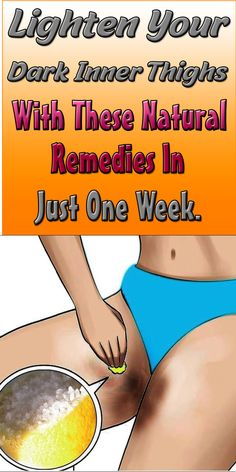 To solve this discomfort, I will be telling you some natural remedies to lighten dark inner thigh, butt and Lighten Armpits, Dark Armpits, Lighten Skin, Dull Skin, Dark Underarms Remedy, Inner Thigh Darkness, Dark Bikini Area, Lighten Inner Thighs, Skin Care Remedies
