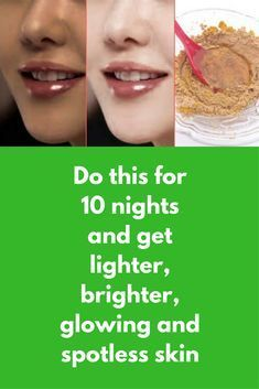 Do this for 10 nights and get lighter, brighter, glowing and spotless skin Today I am going to share one natural remedy to get clear, fairer flawless skin . this is a face mask but you do not have to wash it, you can leave it on your face overnight as night cream and wash your face next morning For this you will need Sandalwood powder+ Turmeric powder …