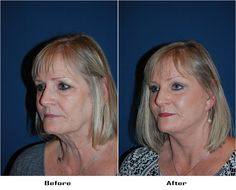 Procedures Performed: Endoscopic Brow Lift: Brow lift Eyelid: Lower Lid Blepharoplasty with SOOF Deep Plane Minituck Laser Resurfacing: eyes and mouth Dr. Freeman's Makeovers Endoscopic Brow Lift, Co2 Laser Resurfacing, Eyelid Surgery, Brows, Eyes, Plane, Beauty, Eyebrows, Eye Brows