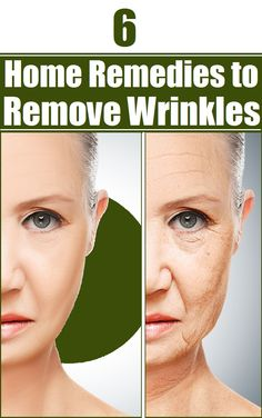 6 Home Remedies to Remove Wrinkles Hugestyles Beauty Care, Hair Beauty, Spa, Beauty Secrets, Beauty Tips, Hair Skin Nails, Facial Scrubs, Wrinkle Remover, Beauty Recipe