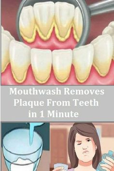 Did you know that the oral health is of utmost importance for the overall health? Taking care of the mouth, teeth, gums, and the oral health in general can help prevent gum disease, tooth decay, a…