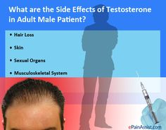 What are the Side Effects of Testosterone in Adult Male Patient? Read: http://www.epainassist.com/question-and-answer/testosterone-treatment-of-opioid-induced-hypogonadism