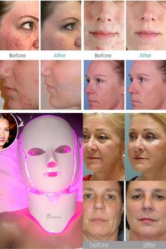 younique skin care results Led Light Therapy Mask, Foot Detox Soak, Anti Aging, Kate Moss, Tighten Loose Skin, Skin Mask, Womens Wigs, Spa, Skin Care Tips