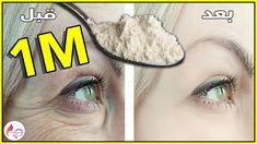 Dry Hands Remedy, Hooded Eye Makeup, Les Rides, Tips Belleza, Anti Aging Skin Care, Youtube, Health And Beauty, Beauty Hacks, Hair Beauty