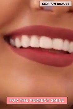 Veneers Teeth, Perfect Teeth, Teeth Braces, Dental Facts, Teeth Bleaching, Stained Teeth, Natural Teeth Whitening, Whitening Kit, Best Oral