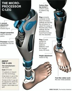 This is amazing. I watch my brother stack socks on his legs to tighten the prosthetics, but these look so much more convenient! You can just crank the top to adjust the fit. So cool, and similar in cost to his current prosthetics. Robotic Prosthetics, Orthotics And Prosthetics, Disruptive Technology, Medical Technology, Real Robots, Prosthetic Leg, Lunge, Robot Design, Cool Tech