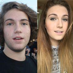 After before photo transgender