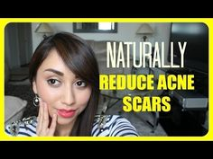 Natural Acne Scar Fading Mask - YouTube