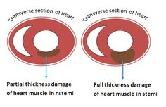 // NSTEMI (Non–ST-segment elevation myocardial infarction) and STEMI (ST-segment elevation myocardial infarction) are commonly known as heart attack. But they are different from each other in some ...