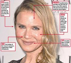 "Renee Zellweger, a cherubic cutie with the trademark cheeks in ""Jerry Maguire"" and ""Chicago,"" looked utterly unrecognizable on the red carpet in Los Angeles on Monday night — and experts think the Oscar winner went under the knife. Plastic Surgery Facts, Plastic Surgery Before After, Plastic Surgery Gone Wrong, Cheek Fat, Before And After Photoshop, Face Change, Eyelid Surgery, Celebrity Plastic Surgery, Renee Zellweger"