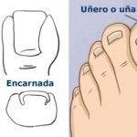 Tratamientos para uñas encarnadas (enterradas)