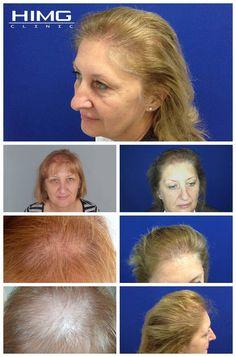Hajbeültetési eredmények hajátültetés előtt és után készült képekkel - Hajátültetés PROFUE Clinic