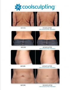 23 Best CoolSculpting Before And After images in 2014