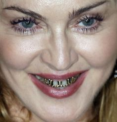 Awkward Grill Girl Madonna Looks Funny Wearing Golden Braces - Wackyy Braces Humor, Madonna Looks, Father Time, Gold Teeth, Grillz, American Singers, Funny Images, Dental, Photography