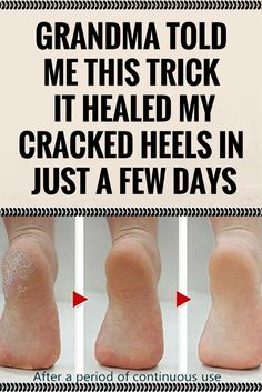 GRANDMA TOLD ME THIS TRICK. IT HEALED MY CRACKED HEELS IN JUST A FEW DAYS '[,., /. . ,`