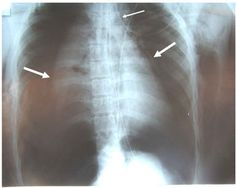 What to do for a collapsed lung when you can't get to a doctor.    (X-ray of collapsed lungs courtesy a Creative Commons license. See post for full credit.)
