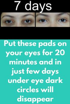 Put these pads on your eyes for 20 minutes and in justfewdays under eye dark circles will disappear Dark circles can ruin your whole look. All the time it is not possible to hide them with concealer, it makes them darker. Today I will share one natural remedy that can help you in getting rid of them in just a few days and this will take only a few minutes of yours Ingredients …