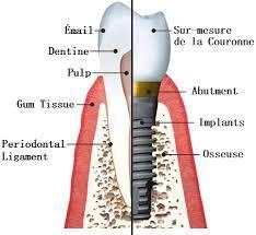 Implant dentaire - Quand vais-je recevoir mes nouvelles dents? Il faut attendre plusieurs semaines pour que l'implant soit intégré à l'os environnant. Dans le cas d'un implant dans la mâchoire inférieure ou supérieure il y a une période de guérison de 3 á 4 mois, après un sinus lift dans la mâchoire supérieure il faut attendre 6 mois.