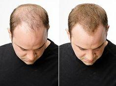 Padání vlasů: http://www.toppik.cz/padani-vlasu/