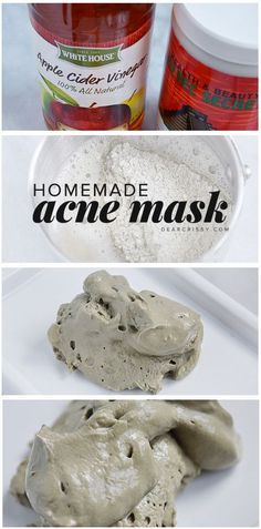 Homemade Acne Mask - Acne Scar Mask - Benefits of Sulfur Mask For Acne ** Want to know more, click on the image. #blackhead