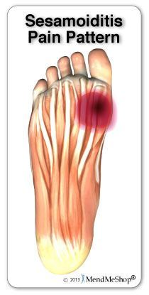 Sesamoiditis is another type of ball of foot pain. Let us help relieve the pressure! Plantar Fasciitis Massage, Plantar Fasciitis Exercises, Plantar Fasciitis Treatment, Ankle Pain, Heel Pain, Foot Pain Chart, Foot Anatomy, Foot Exercises, Health