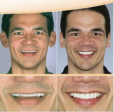 Andrew's Teeth before and after cosmetics Dentistry