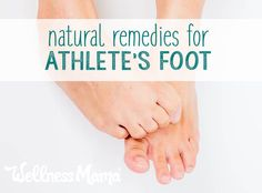 5 Effective Natural Ways to Remedy Athlete's Foot for Good