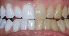 Unbelievable Tips: He mixed 2 ingredients and passed .- Dicas Inacreditáveis: Ele misturou 2 ingredientes e passou nos dentes. O… Unbelievable Tips: He mixed 2 ingredients and brushed his teeth. Coconut Oil For Teeth, Coconut Oil Pulling, Coconut Oil Uses, Teeth Whitening Remedies, Natural Teeth Whitening, Tumeric For Teeth Whitening, Whiten Teeth With Tumeric, Natural Toothpaste, Skin Whitening