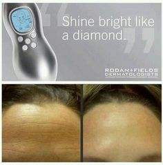 Rodan+Fields MACRO E is like a gentle, but effective Shop Vac for your face. It sucks up 5 million dead skin cells in 5 minutes! Use it once a week on your face, neck, and chest area for best results. This tool lasts years!! To get yours, go to www.maryhatch.myrandf.com