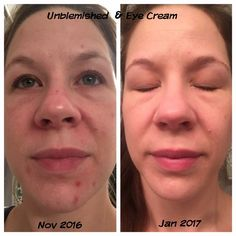 """Check out Sarah's results!!  """"I haven't had a 'breakout' in over 4 weeks (including shark week)  which causes havoc on our skin! It's amazing the stresses relief clear skin can bring!  and now finally fixing the damage of so many years that breakout has caused!""""  Let's get you started on your journey to great skin!! Message me!!"""