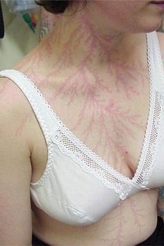 Facts That Sound Like B.S. But Are Actually True ~ ~ ~ ~ You get a tattoo after getting struck by lightning. The electrical discharge of a lightning strike can leave a temporary tattoo-like marking or scar known as a Lichtenberg figure. The patterns created are known to be examples of fractals.