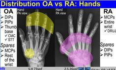 comparison of osteoarthritis and rheumatoid arthritis involvement of the hands