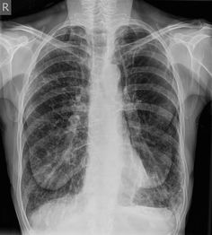 Chronic obstructive pulmonary disease (COPD) represents a spectrum of obstructive airway diseases. It includes two key components which are chronic bronchitis-small airways disease and emphysema.   https://radiopaedia.org/articles/chronic-obstructive-pulmonary-disease-1