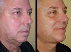 Brass Tacks As To Why Facial Aerobics Are Perfect For Taking Away Lines And Firming