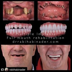 Changing lives! Congrats @rabihabinader Great job  #Repost @rabihabinader with @repostapp.  I love Restoring Smiles that gives a real meaning to my job #skyclinicdentalcenter#restoringsmiles#dentalimplants#smiles#happypatient#dentistry#identistry#lifechangingdentistry#dubai#mydubaimycity#smiledubai#mydubai @rabihabinader by emotional_dentistry Our Dental Bridges Page: http://www.myimagedental.com/services/cosmetic-dentistry/bridges/ Other Cosmetic Dentistry services we offer…