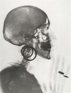 La boite de Pandore, une autre photographie par Jan Dibbets - Musée d'Art moderne de la Ville de Paris  Meret Oppenheim (1913-1985), Radiographie du crâne de M. O., 1964. Peter Freeman, Inc. © ADAGP, Paris 2016