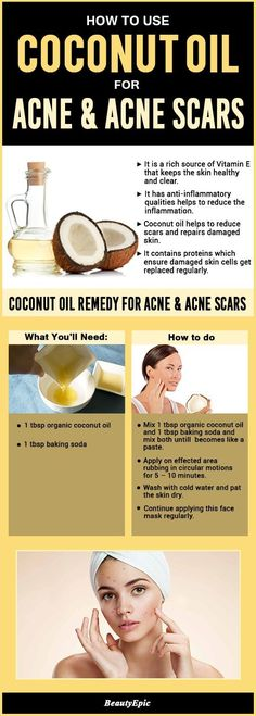 8 Best Ways to Get Rid of Acne and Acne Scars Fast with Coconut Oil
