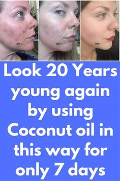 Overnight Skin CareUsing coconut oil before bedtime will make your face pure, clean and refreshed for sure. It penetrates deeply into the skin, making it soft, flexible and nourished. Coconut Oil Hair Treatment, Coconut Oil Hair Growth, Coconut Oil Facial, Coconut Oil For Acne, Coconut Milk, Skin Care Routine For 20s, Skincare Routine, Skin Care Remedies, Natural Remedies