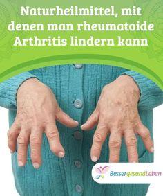 Natürliche Hausmittel gegen Arthrose in Finger und Hand