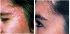 Mary Dolson Eczema Before and After…