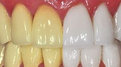 This Turmeric Anti-Inflammatory Paste Will Reverse Gum Disease, Swelling, And Kill Bacteria - Healthy Holistic Living