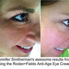 Anti Age Multi Function Eye Cream Results! Love this cream for under the eyes and around. Http://jaclynward.myrandf.com