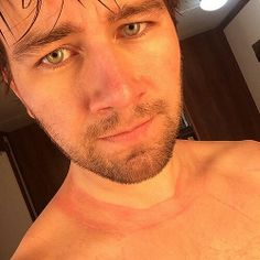 This is what 9 hours in a wet suit did to Torrance coombs neck