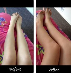 before and after my home made no streak tanning cream If tested, and it lasts for 3 days.. It fade a little after every shower/bath. What to do:- 1-Get some cocoa powder 2tbps depending in how tan you want to be. (I used 2) 2-any moisturiser you have 3-a empty bottle 4-cotton buds, or anything that can help you apply the cream 5-mix it all together you should end up with a brown mix. Dont worry, it wont be that dark on your skin. Good for super light girls! Interesting....
