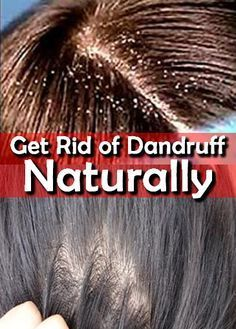 Read More About Regardless of what you think of dandruff, it could be cured with the right type of treatment. Check out these Natural - Home remedies Fitness And Beauty Tips, Health And Beauty Tips, Health Tips, Natural Home Remedies, Herbal Remedies, Homemade Beauty Recipes, Getting Rid Of Dandruff, Natural Hair Care, Herbal Medicine