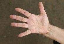 Parestesia – que es, sintomas, causas, tratamiento, diagnostico