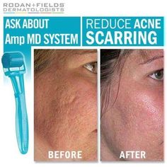 """This week on """"The Doctors,"""" they share the newest treatment for acne scarring: collagen. The Rodan + Fields AMP MD Roller is the breakthrough tool that delivers collagen-stimulating peptides to the skin, filling in acne scars as well as fine lines. Rodan Fields Skin Care, My Rodan And Fields, Rodan And Fields Reviews, Amp Roller, Micro Roller, Cystic Acne Treatment, Skin Treatments, Rodan And Fields Consultant, Independent Consultant"""
